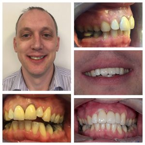 Dental Implants Case