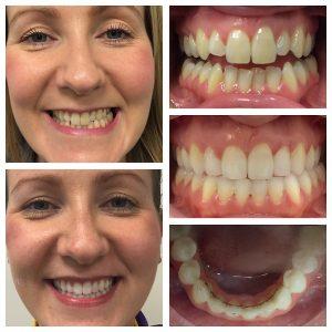 orthodontics-case-01