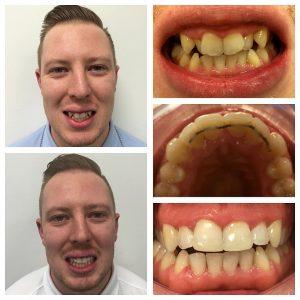 orthodontics-case-02