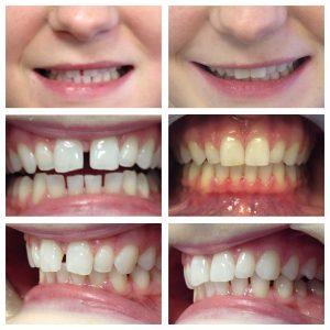 orthodontics-case-05