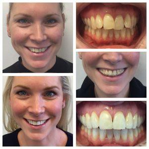 orthodontics-case-06
